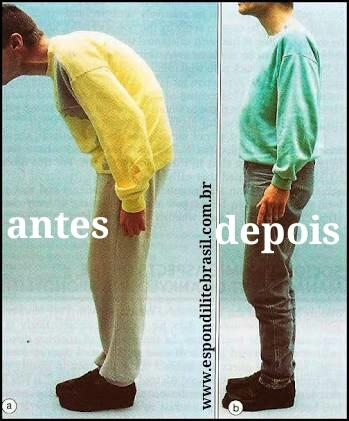 """alt=""""Osteotomia lombar para Espondilite"""""""