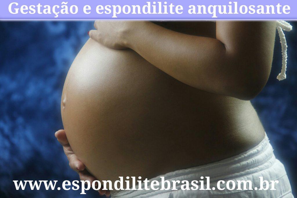 """alt=""""Efeitos da gravidez na Espondilite"""""""