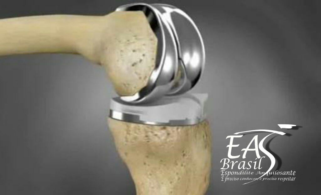 """alt=""""Pós-operatório de cirurgia para colocação de protese óssea"""""""