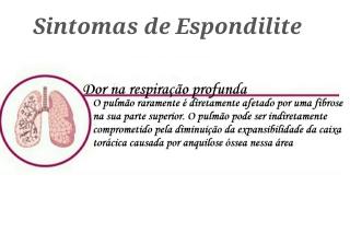 """alt=""""Espondilite e DPOC"""""""