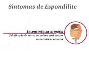 "Alt=""Espondiloartrite Axial"""