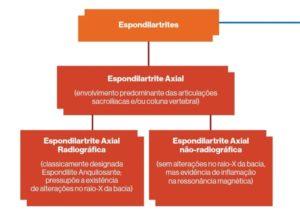 "alt=""20 perguntas sobre espondiloartrite axial"""