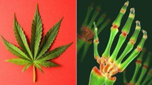 """alt=""""Cannabis no Tratamento de Doenças Reumáticas"""""""